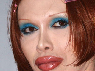 Singer Pete Burns Dies Of Heart Attack