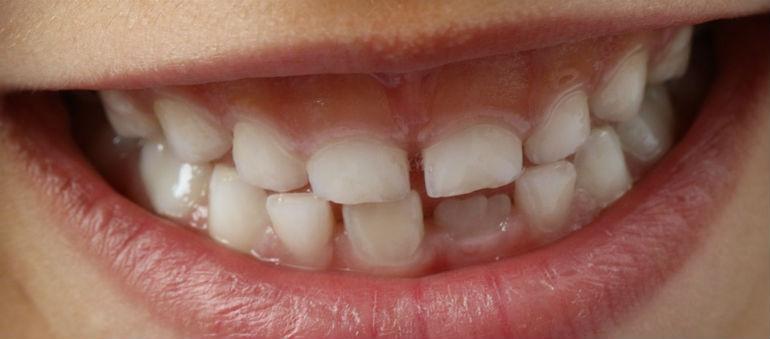 Demand Piles Pressure On Dental Service